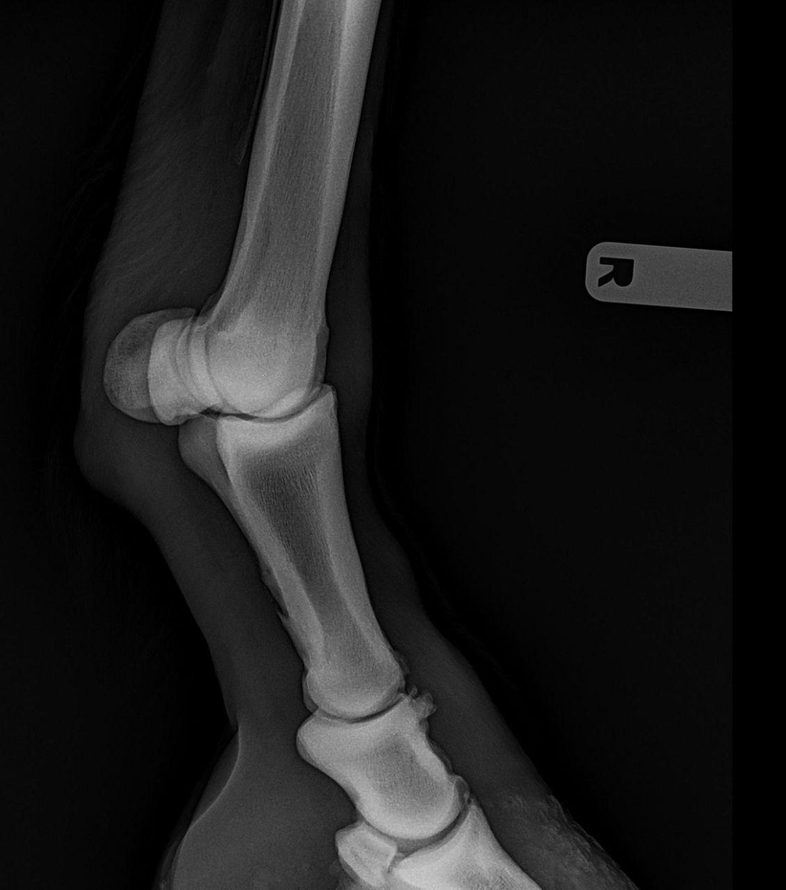 Krongelenkschale lateral